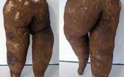 Leggy Root Statue